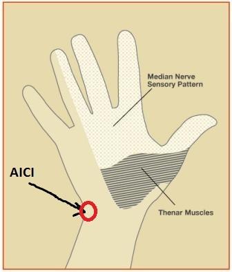 Artroza articula?iilor genunchiului in tratamentul drogurilor